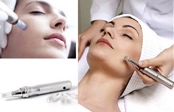 microneedling2a